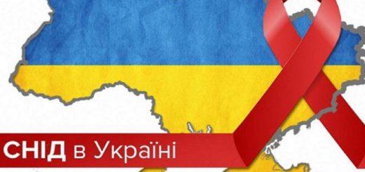 Реферат на тему СНІД - www.studik.kiev.ua